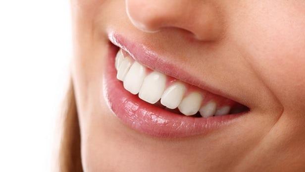 titanium-dioxide-teeth-whitening-1